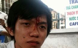 Cty Thiên Ngọc Minh Uy hứa khắc phục vụ việc 'đánh hội đồng khiến sinh viên chảy máu đầu'