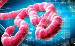 Miễn phí điều trị nếu mắc bệnh Ebola tại Việt Nam