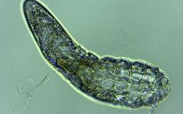 Vẻ ngoài đáng sợ của loài ký sinh trùng trên da mặt con người